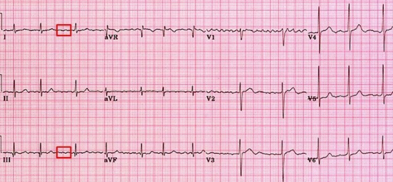 κολπική μαρμαρυγή ηλεκτροκαρδιογράφημα, Απόστολος Τζίκας, επεμβατικός καρδιολόγος