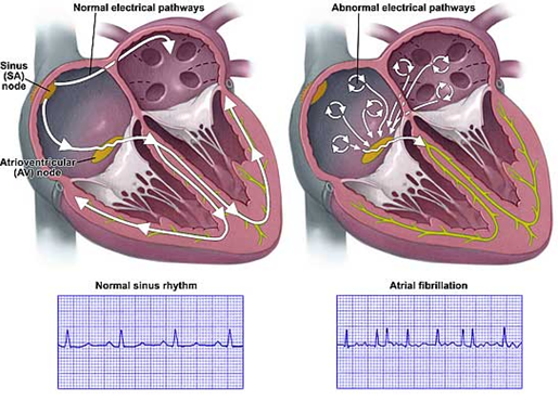 φυσιολογική λειτουργία και κολπική μαρμαρυγή, Απόστολος Τζίκας, επεμβατικός καρδιολόγος